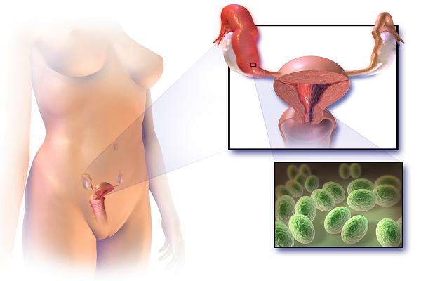 Какие пути заражения микоплазмозом