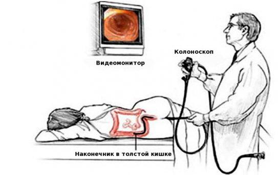 Какую процедуру выбрать — МРТ кишечника или колоноскопию?