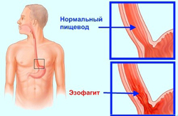 Катаральный эзофагит: что это, как лечить