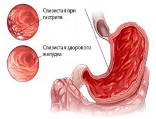 Катаральный гастрит: что это, симптомы и лечение