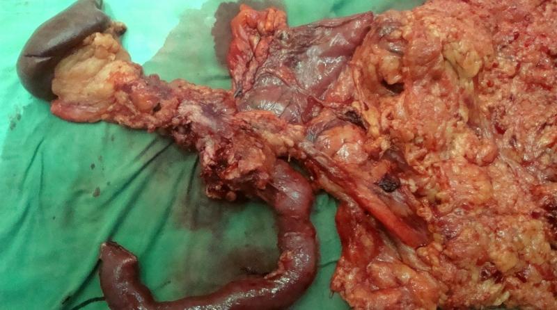 Классификация и лечение опухоли прямой кишки