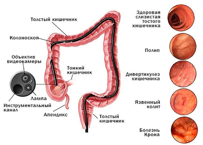 Колоноскопия кишечника: что это? Как проводится и как себя подготовить