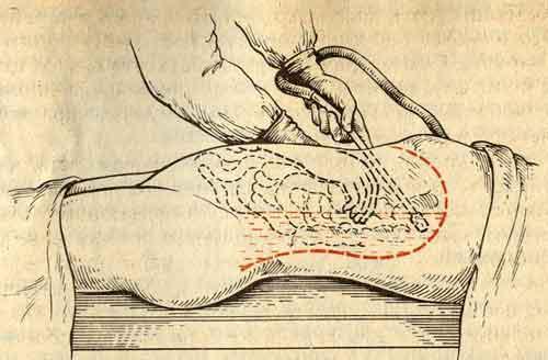 Кому показано дренирование брюшной полости?