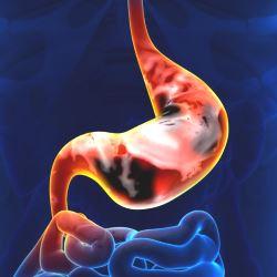 Куда распространяются метастазы рака желудка?