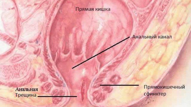 Лечение анальных трещин у детей