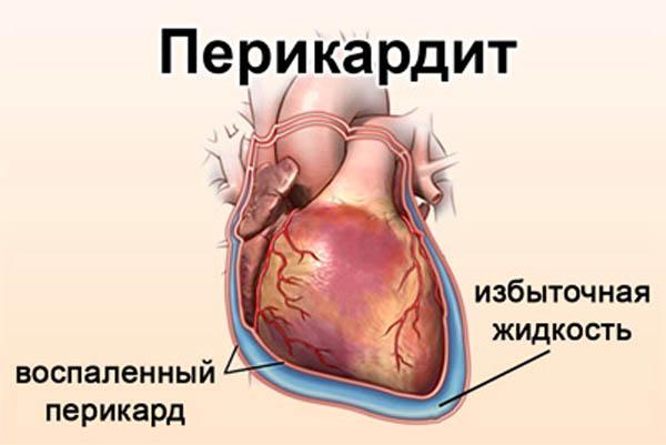 Лечение аритмии сердца методом прижигания
