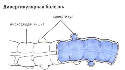 Лечение дивертикулярной болезни толстой кишки