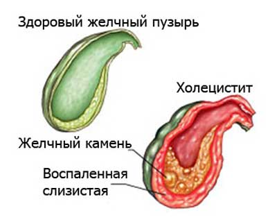 Лечение и диета при остром холецистите