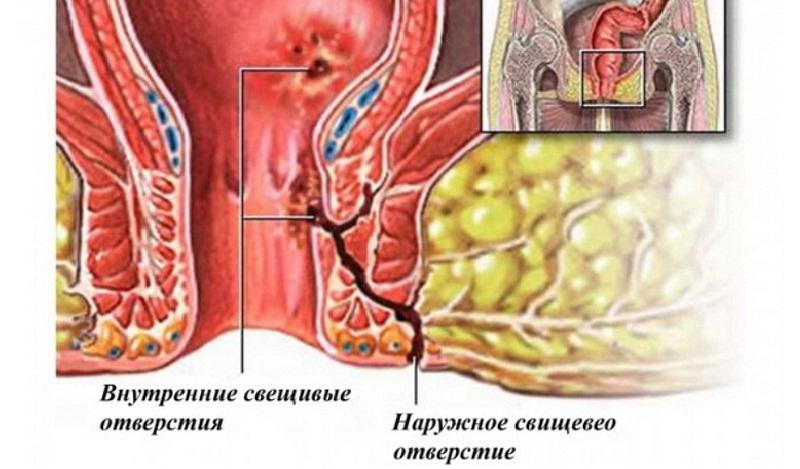 Лечение парапроктита у новорожденных и детей