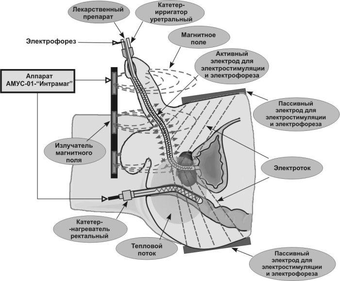 Электростимуляция простатита противопоказания простатит таблетки метронидазол