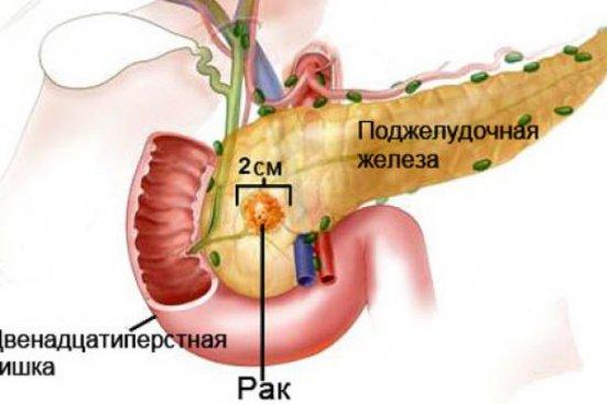 Лечение рака головки поджелудочной железы