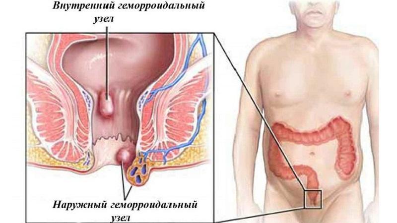 Лечение шишки заднего прохода у мужчин, женщин и детей