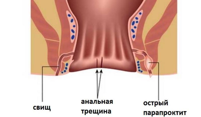 Лечение свища прямой кишки без операции