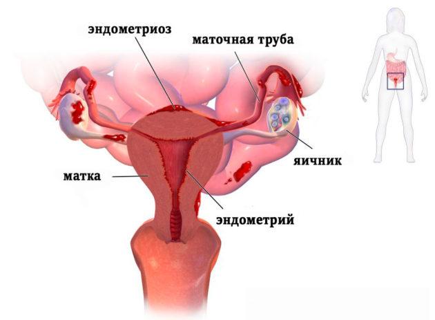 Мажущие выделения в середине цикла
