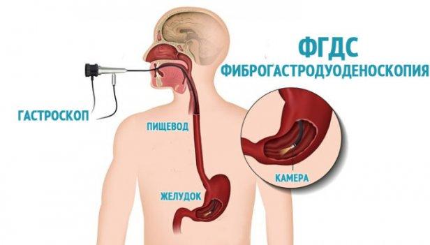 Методы лечения анацидного гастрита
