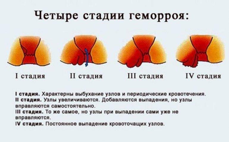 Может ли геморрой пройти без специального лечения сам? 2 типа геморроидальных узлов