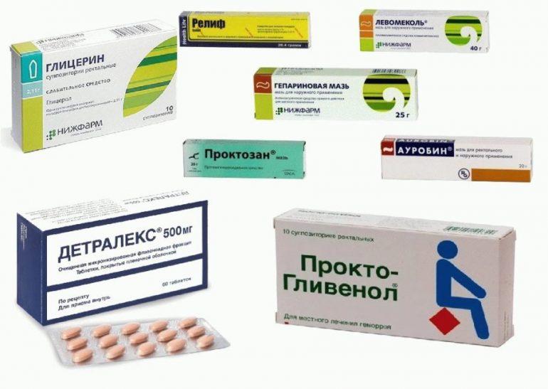 Можно ли вылечить геморрой на начальной стадии: 5 методов лечения + народные средства