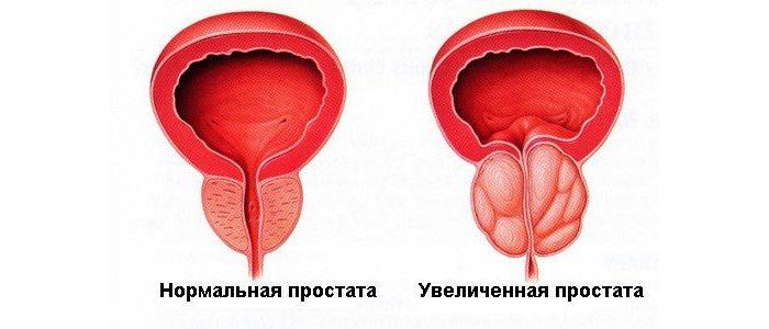 Можно ли заразиться простатитом от мужчины половым путем?