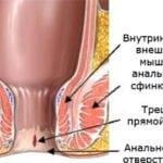 Мумие при геморрое: схема лечения