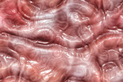 Неатрофический гастрит (хронический и другие виды): что это, симптомы и лечение