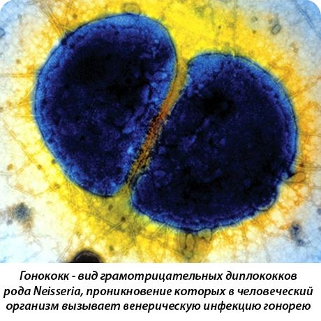 Neisseria gonorhoeae (Нейссерия гонорея) — особенности возбудителя
