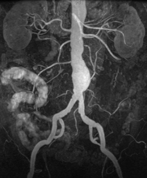 Нестенозирующий атеросклероз БЦА: признаки и лечение