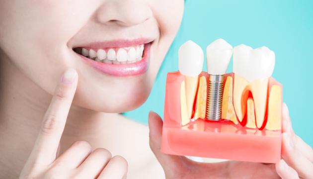 Особенности и преимущества зубных имплантатов
