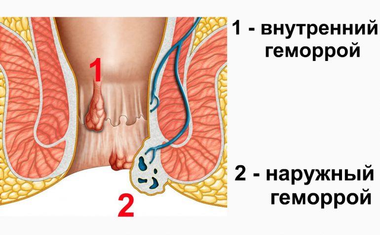Особенности применения мази Солкосерил при лечении геморроя