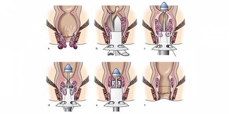 Особенности проведения операции Лонго при геморрое и ее эффективность: 7 преимуществ метода