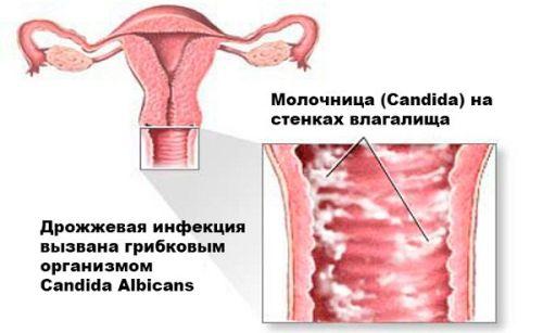 Особенности течения и лечения молочницы при беременности