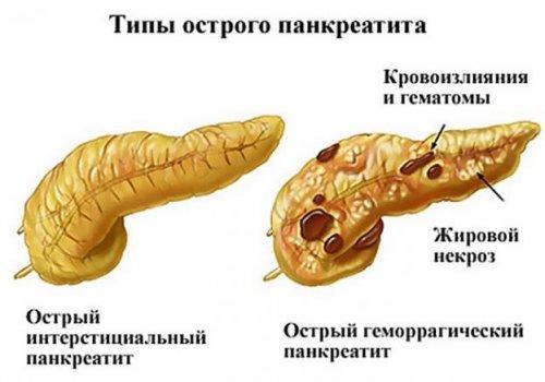 Острый геморрагический панкреатит
