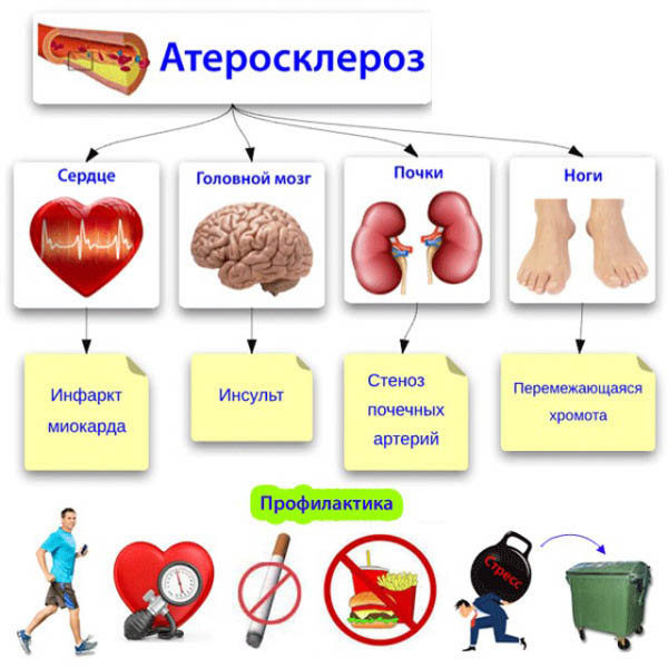 Первичная и вторичная профилактика атеросклероза сосудов