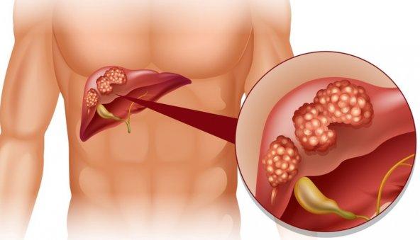 Первые симптомы и проявления рака печени у взрослых и детей