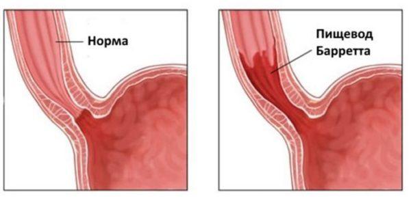 Пищевод Барретта: симптомы и лечение, правила питания, диета