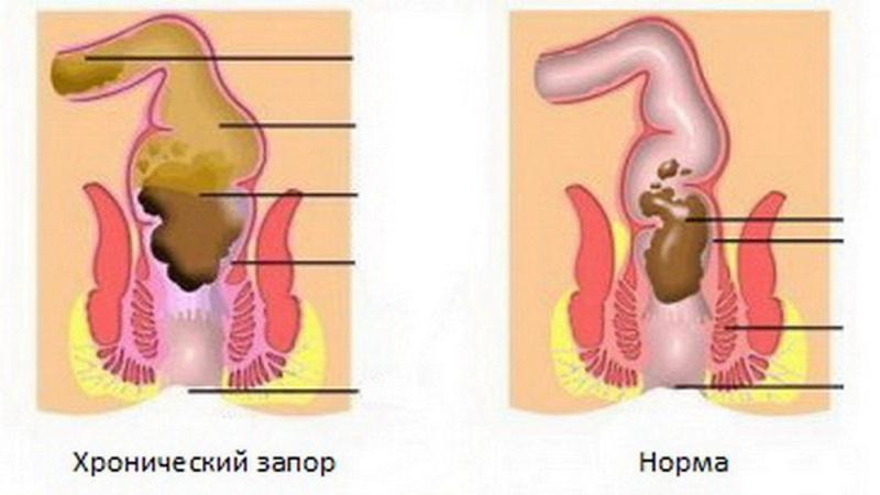 Питание и диеты при геморрое и анальных трещинах