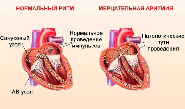 Показания к установке кардиостимулятора сердца и возможные противопоказания