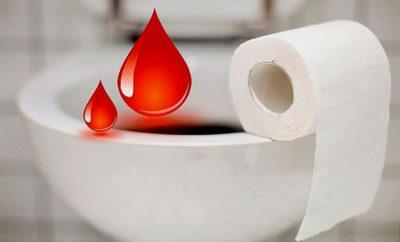 Понос с кровью у взрослого человека: причины и методы лечения