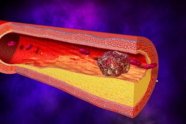 Повышенный пульс при нормальном давлении: причины тахикардии, способы лечения