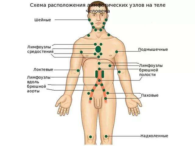 Причины проявлении лимфаденопатии брюшной полости