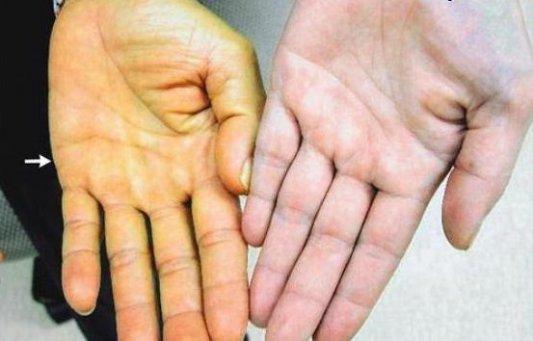 Причины развития и лечение некроза печени