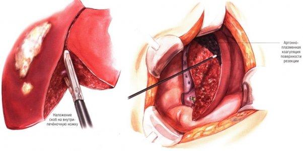 Причины развития и симптомы карциномы печени