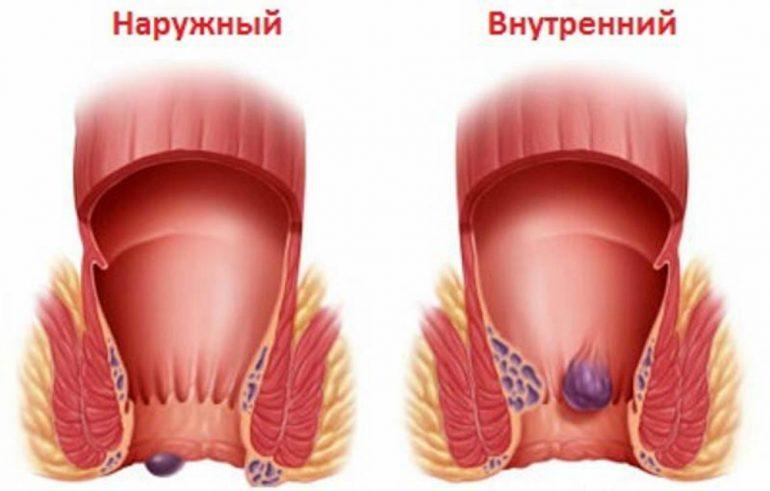 Причины, симптомы и 4 эффективных метода лечения геморроя у женщин