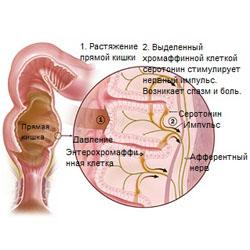 Причины синдрома раздраженного кишечника