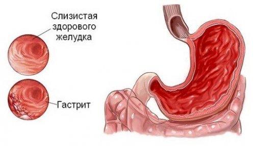 Причины тупых болей в области желудка