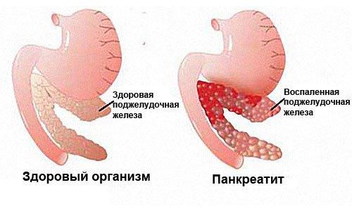 Причины увеличения поджелудочной железы у взрослого и ребенка