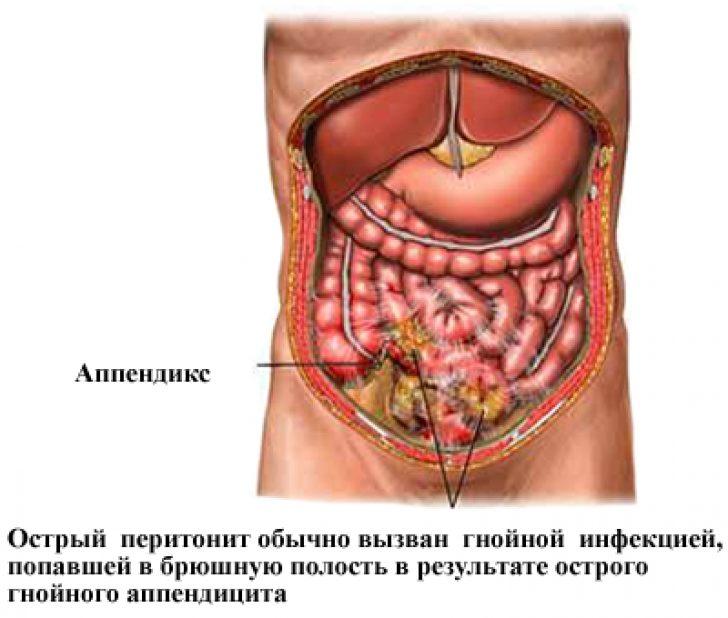 Причины возникновения абсцесса в брюшной полости