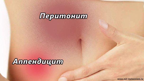 Причины возникновения перитонита брюшной полости