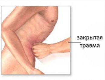 Причины возникновения спаек в кишечнике и методы их лечения
