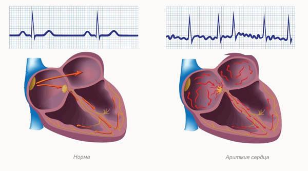 Приступ аритмии: методы восстановления ритм сердца дома