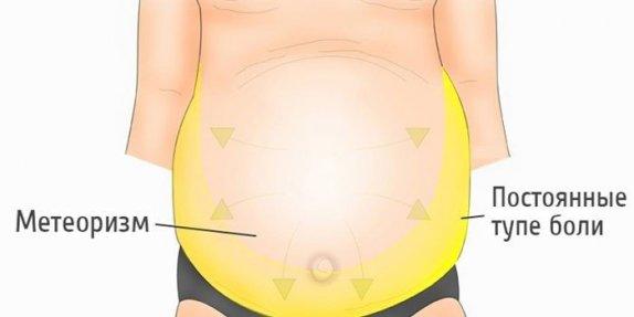 Признаки и лечение асцита при циррозе печени